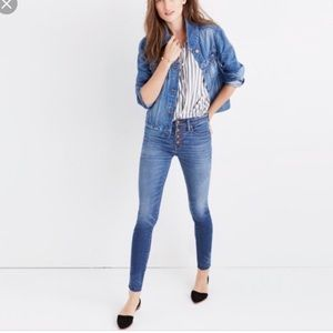 Madewell High Rise Skinny Jeans Button Fly Rizzo